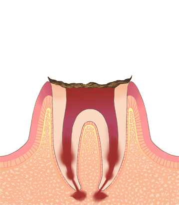 初期むし歯C0