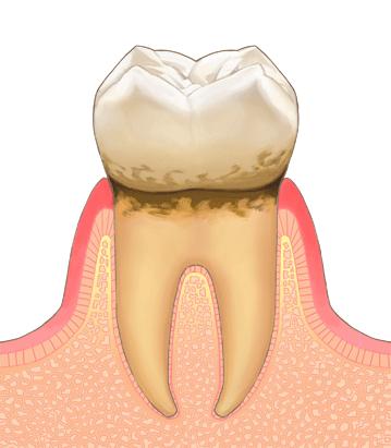 エナメル質のむし歯C1